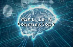 brain, concussion, TBI